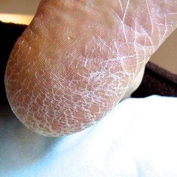 今日は足の痒い水虫が一発で治ったり、ガサガサになった踵の角質がいとも簡単に綺麗に取れる優れものをご紹介します。